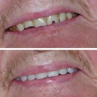 Burton Denture Clinic