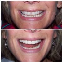 Lashen Dental Group