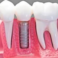 Dentist Longmont
