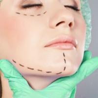 Ernest Cimino MD, Plastic And Reconstructive Surgeon