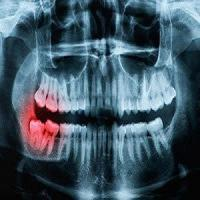 Rockwell Oral and Facial Surgery