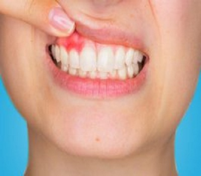 Treat tooth abscess with apple cider vinegar and clove oil