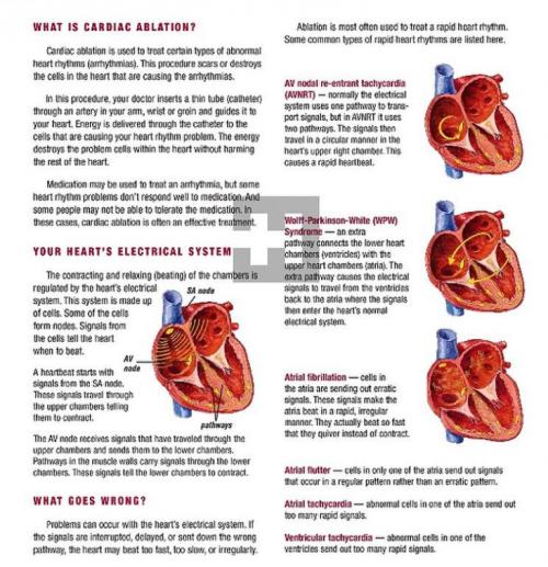 What is Cardiac Ablation