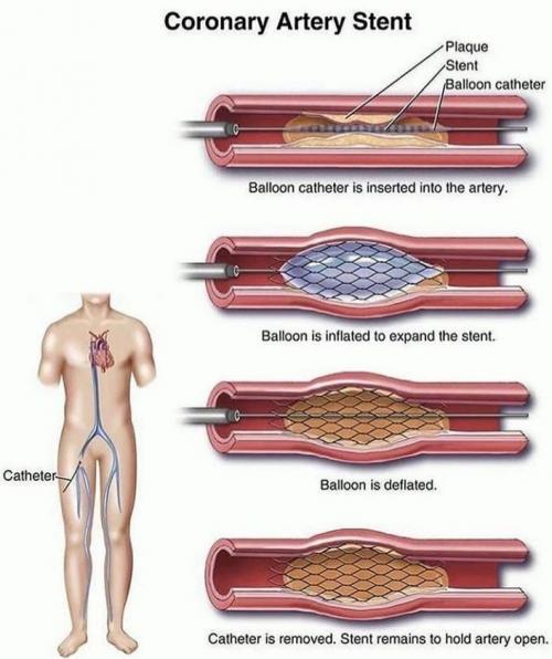 coron ayrartery stent