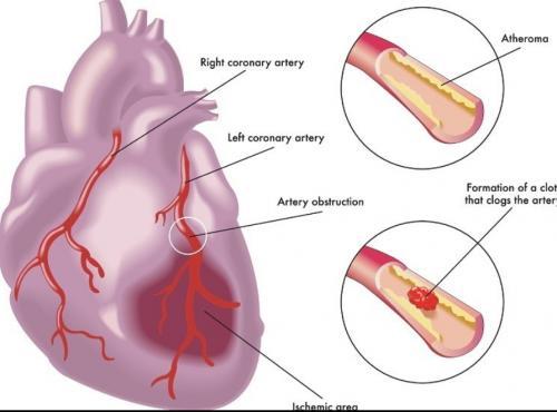 coronay artery diseases