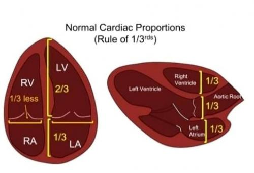 normal cardiac proportion