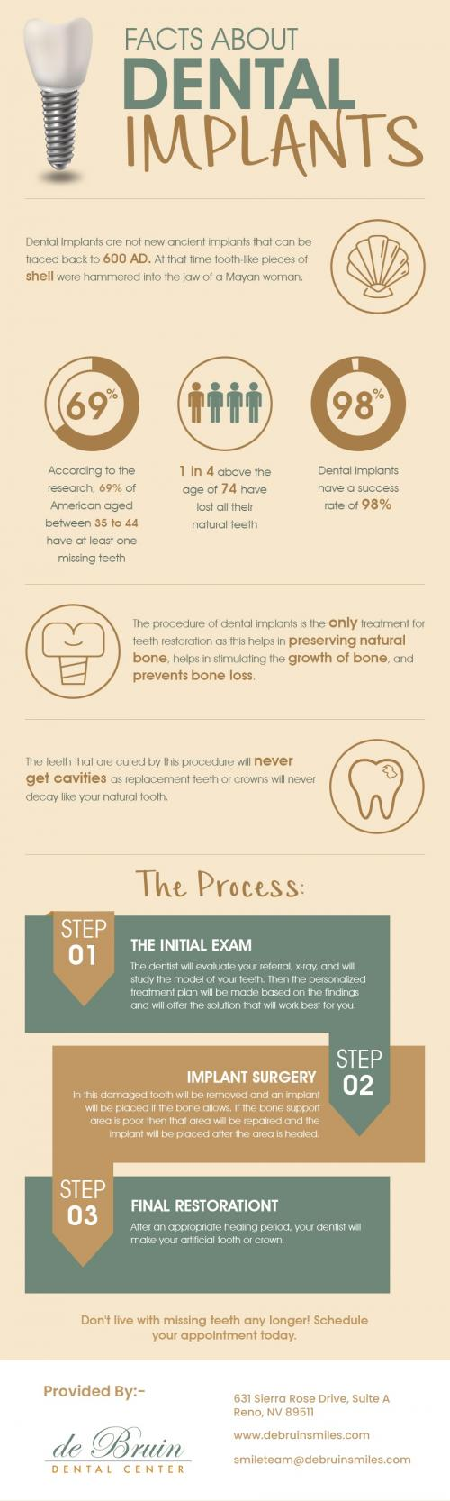 de Bruin Dental Center - Quality Implant Dentistry in Reno, NV